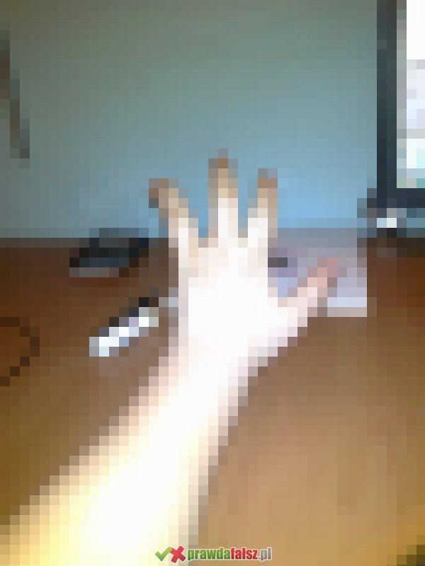Ręka bez palca. Czy to prawda?